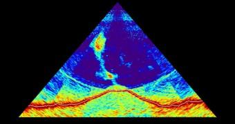 SONAR image of underwater volcano