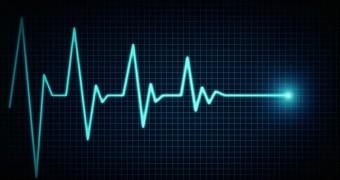 ECG showing heart rate going to zero